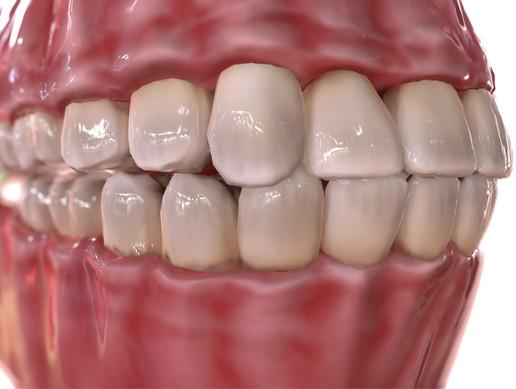HQ Humans Teeth