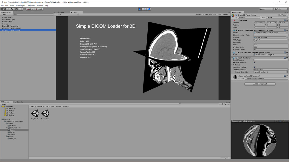 Simple DICOM Loader - Asset Store