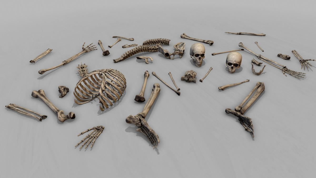 Large Corpse Collection